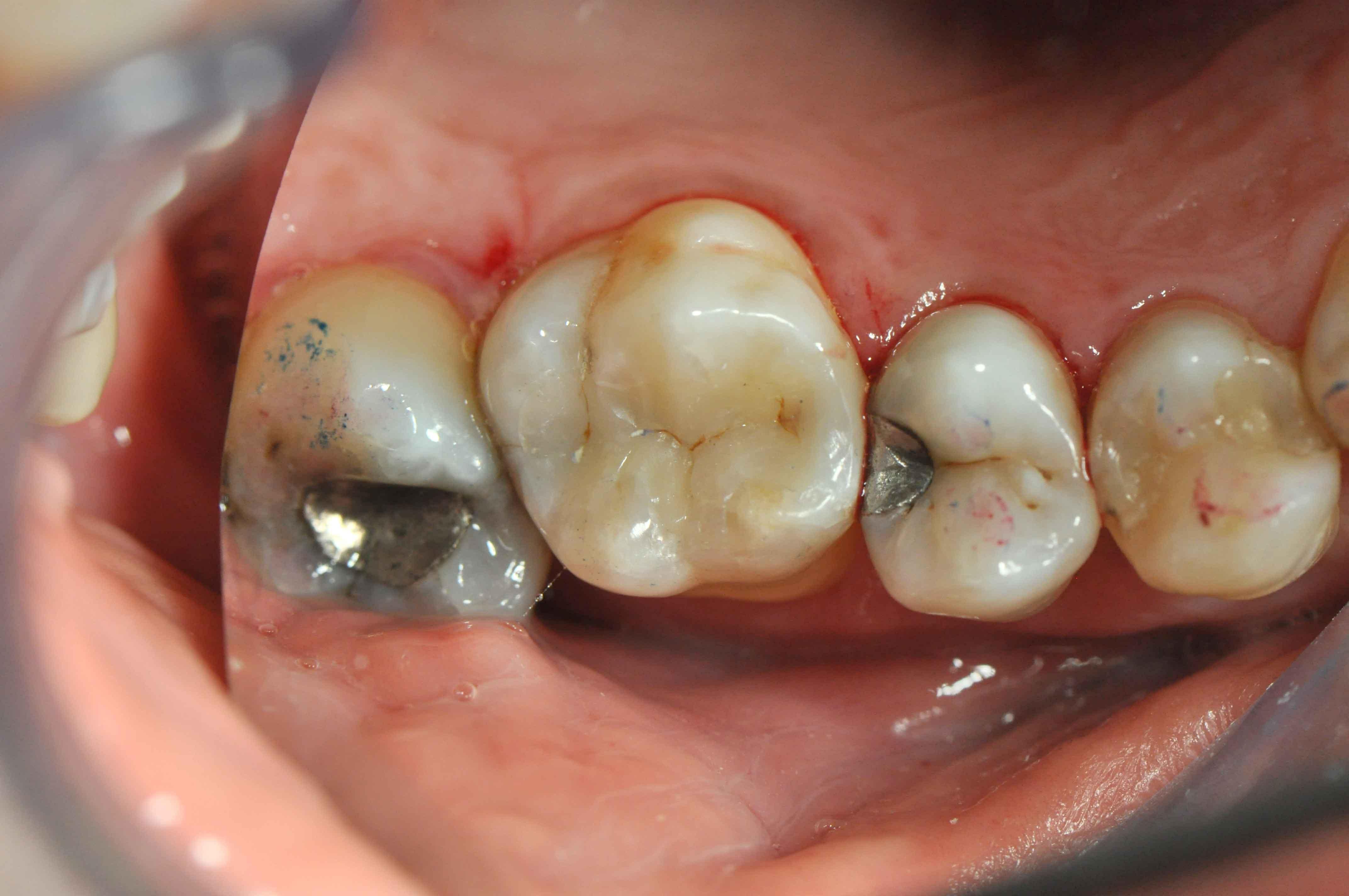 accanto all'otturazione in amalgama d'argento c'e` una piccola decalcificazione, sostituendo l'otturazione il dente e` risanato e sigillato per molti anni.